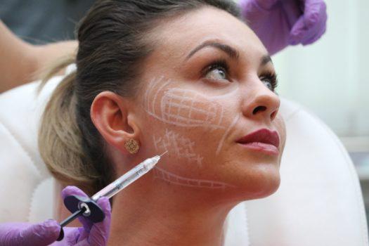 Filler hyaluron Full Face unterspritzung Gesicht