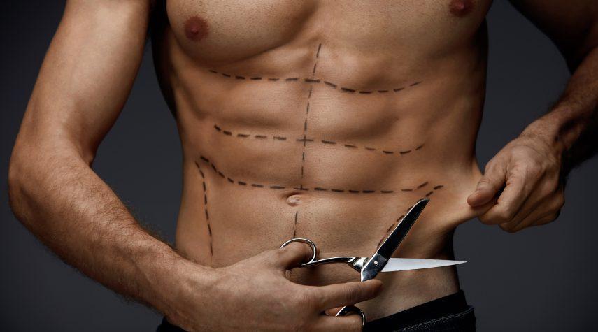Haute Couture Medizin Straffung MenBody Men Haute Couture Medizin © Body Luxury