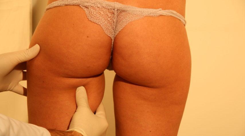 Fettabsaugung Beine