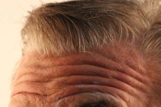 #Stirnfalten #Filler #hyaluronmen #stirnfaltenmen #stirnfalten #men