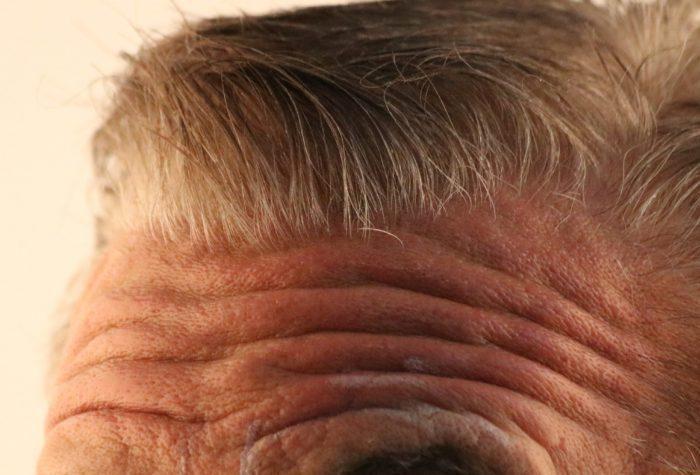 Stirnfalten Filler hyaluronmen Hyaluron Stirn stirnfaltenmen stirnfalten men