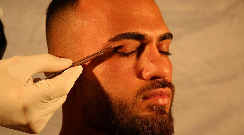 lidstraffung lidanhebung botox