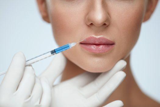 lippen aufspritzen hyaluronsäure Volle Lippen