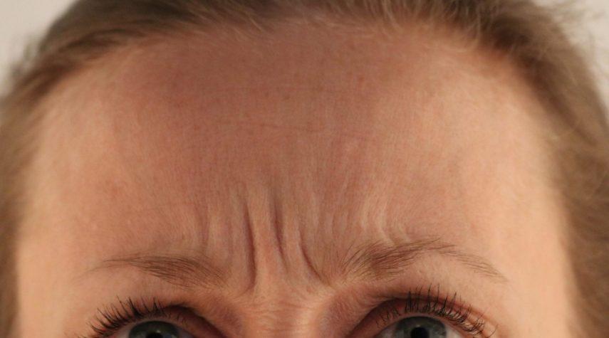botox zornesfalte