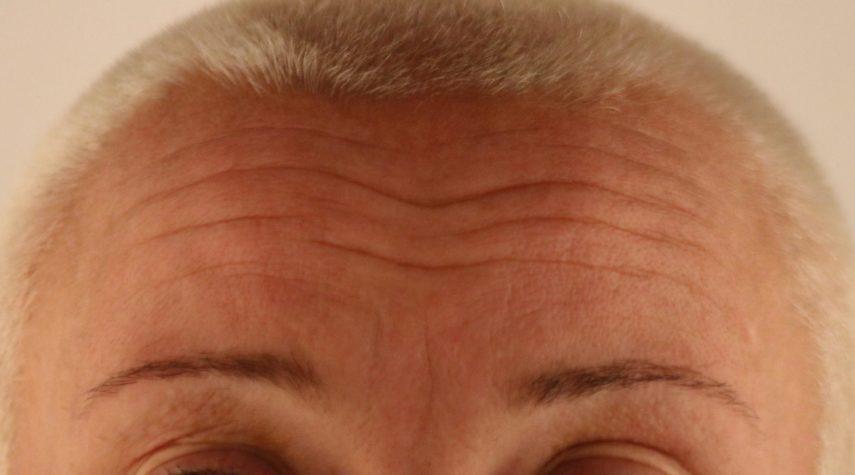 Stirnfalten