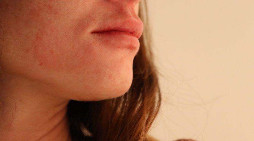 unterspritzung lippen hyaluron Lippen aufspritzen