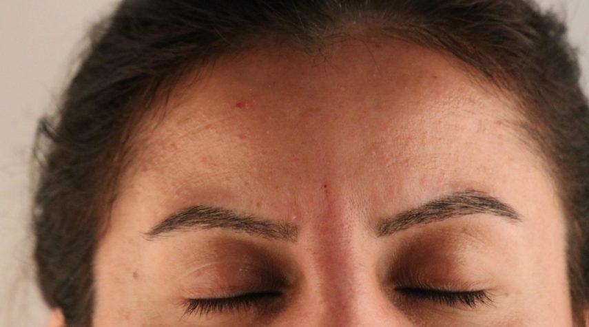 stirnfalten botox entfernen hyaluron mcaesthetics