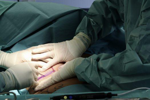 Plastische Chirurgie Schönheitschirurgie