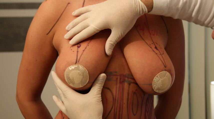bruststraffung brust formen straffen