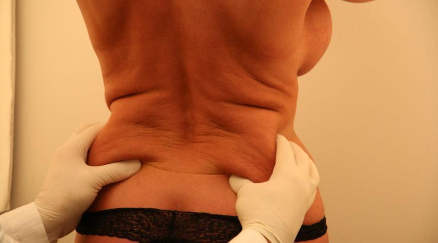 Fettabsaugen seitliche Flanken seidtlicheflanken fettweg