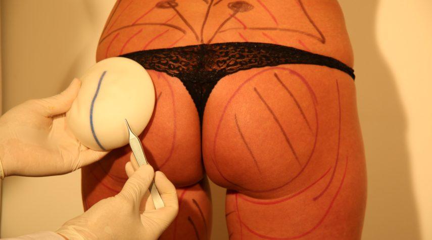 Po Implantate