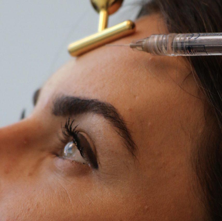 Botox Stirn natürliche Stirn Faltenfrei