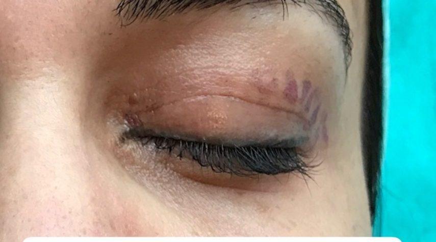 Straffung der Augenlider