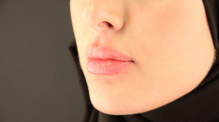 Lippen unterspritzen hyaluron
