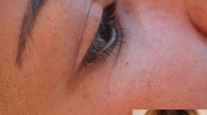 Welches Hyaluron bei Augenringen?