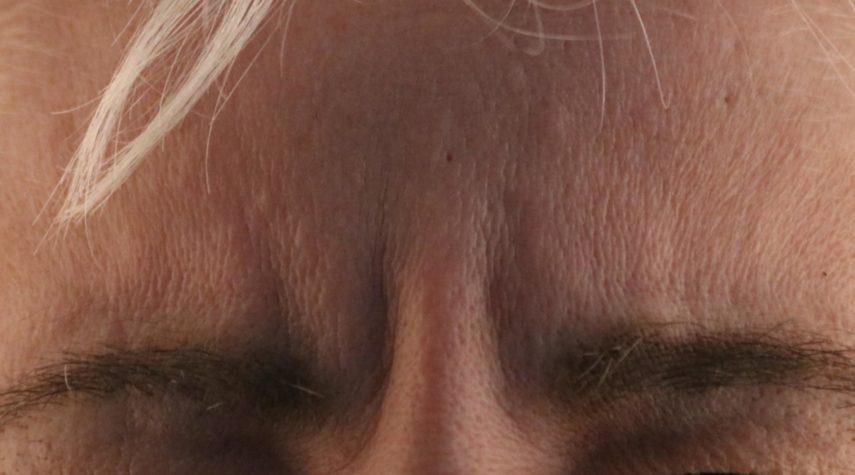 Zornesfalte entfernen botox hyaluron