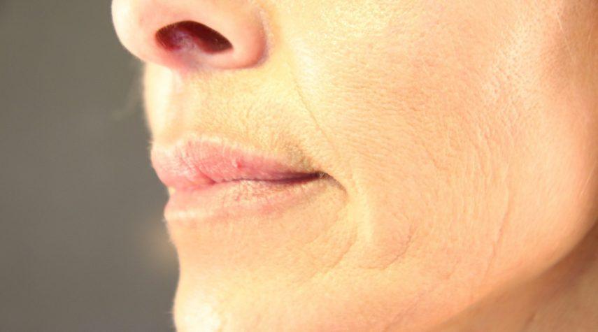 lippenaufbau nachher hyaluron unterspritzen