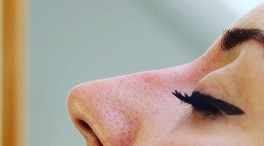 Nasenkorrektur ohne OP Kosten