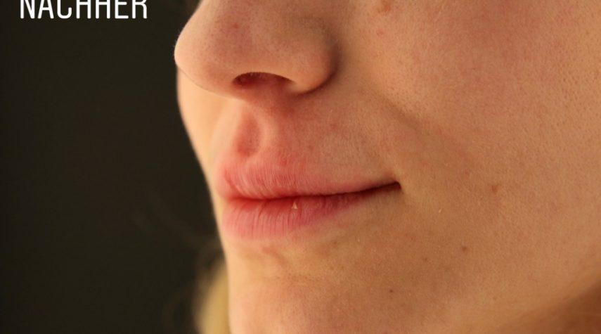lippenaufaufbau mit hyaluron lippen unterspritzen