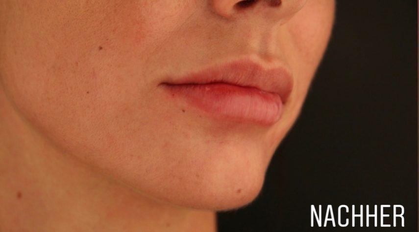 Lippen Vergrößerung