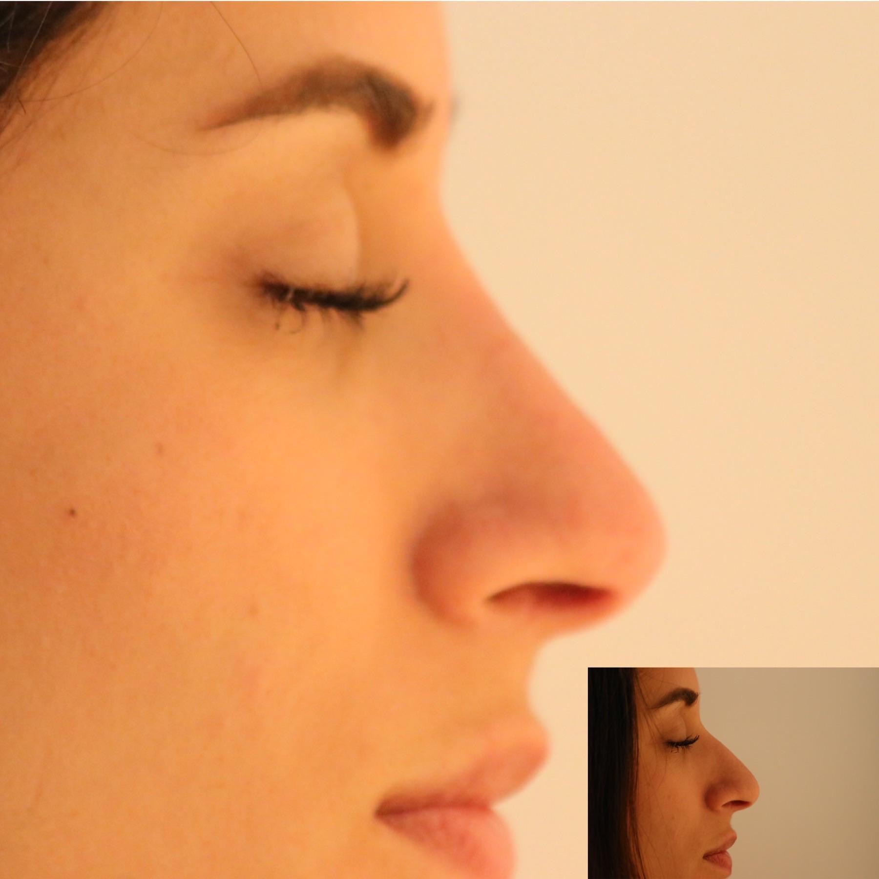Nase ohne OP Paderborn - Mc Aesthetics   Erfahrungen