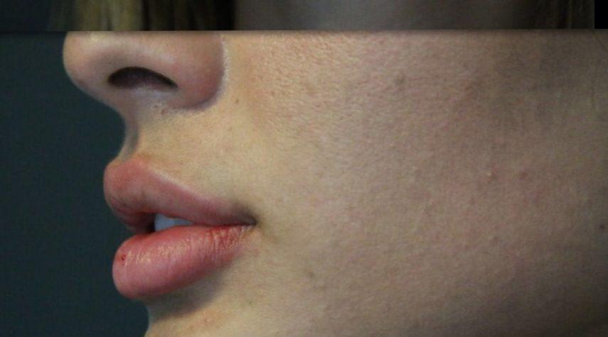 lippen unterspritzen aufbauen lassen