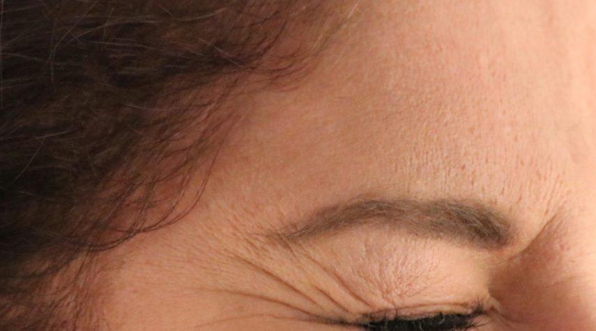 Wie läuft die Behandlung mit Botox ab? Krähenfüße entfernen mit botox hyaluron