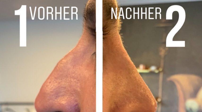 Nasenkorrektur ohne OP Hürth