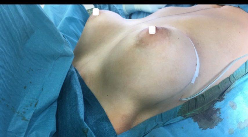 Welche Risiken bei Brustvergrößerung?