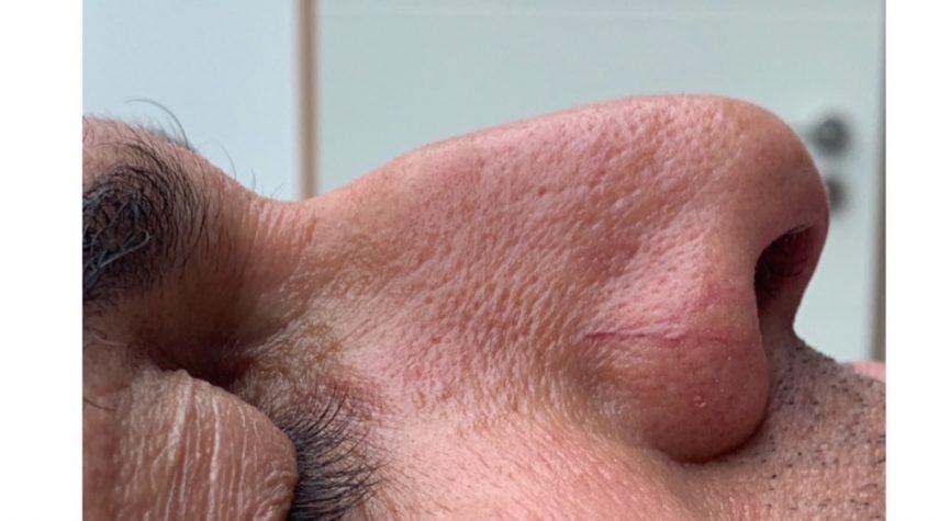 Nasenkorrektur ohne OP Much
