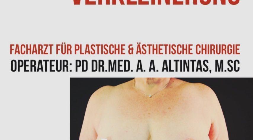Brustvergrößerung Krefeld
