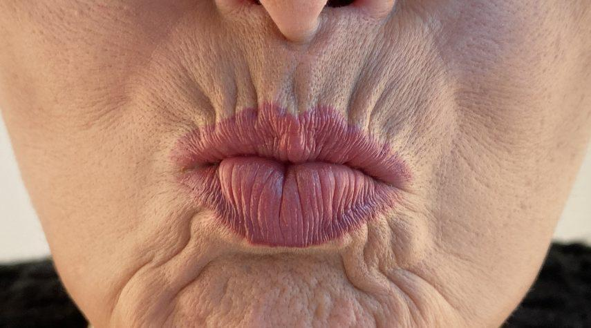 Lippen aufspritzen Attendorn