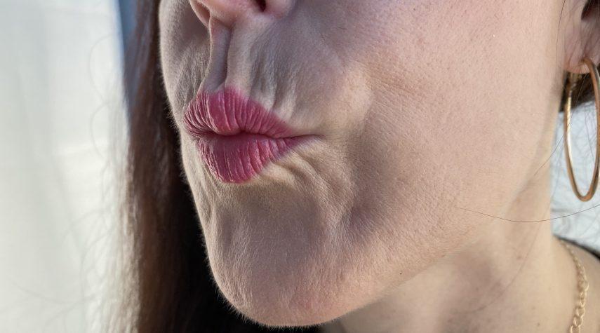 Lippen Was ist die Ursache für Augenringe? Titz