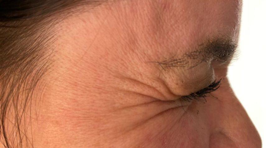 Botox Krähenfüße 2