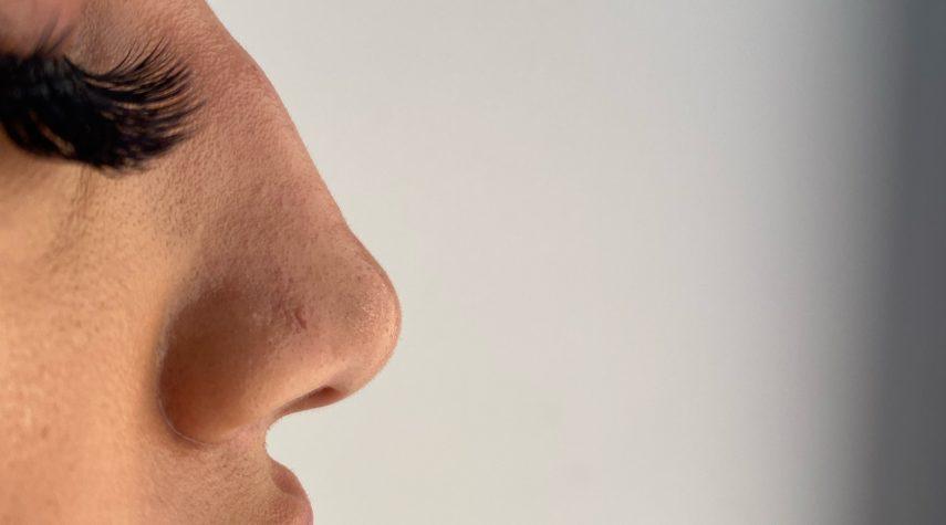 Wo liegt der Preis bei der Nasenkorrektur ohne OP?