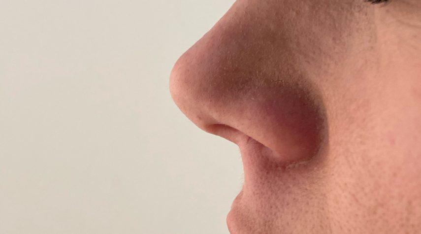 Welche Hyaluronsäure für Nasenkorrektur?