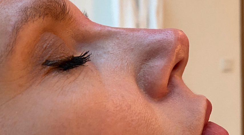 Traum einer perfekten Nase mit OP