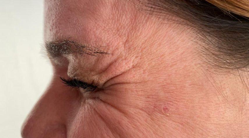 Warum altert unsere Haut?