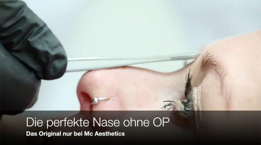 Nasenkorrektur ohne OP - Wie funktioniert das?