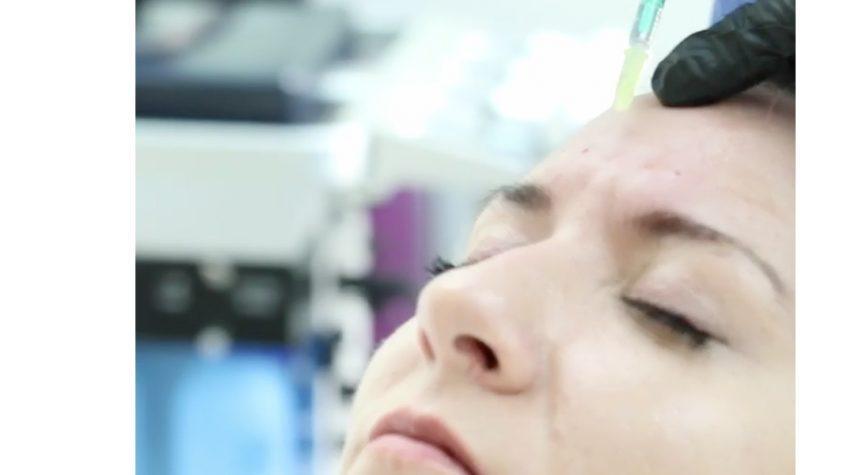 stirnfalten-women-botox Zornesfalte