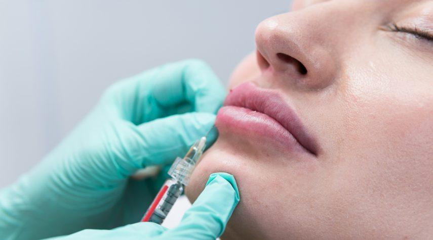 Lippen unterspritzen - Wie funktioniert das?