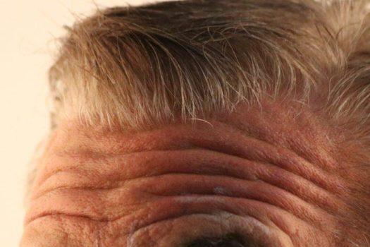 Stirn Botox Stirnfalten-Filler-hyaluronmen-stirnfaltenmen-stirnfalten-men--525x350