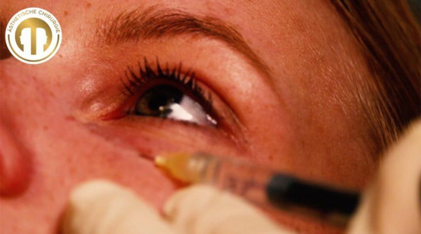 Wie funktioniert Augenringe entfernen?