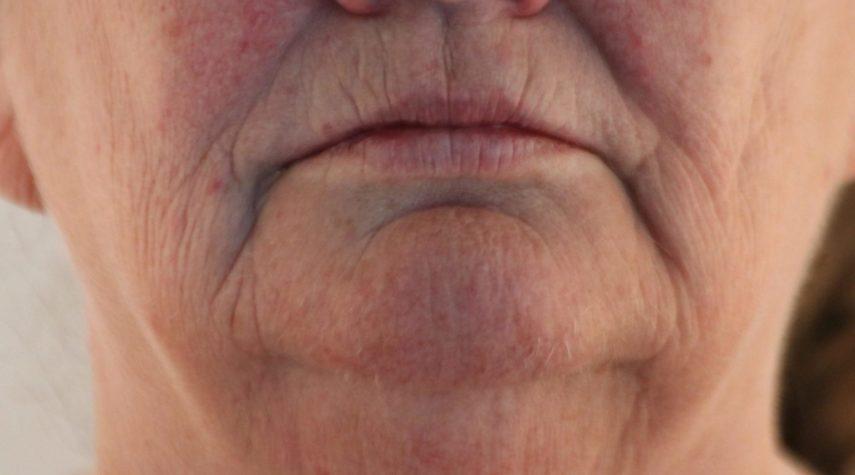 botox-oberlippen-falten