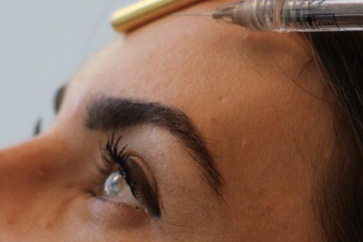 botox-stirn-gesicht