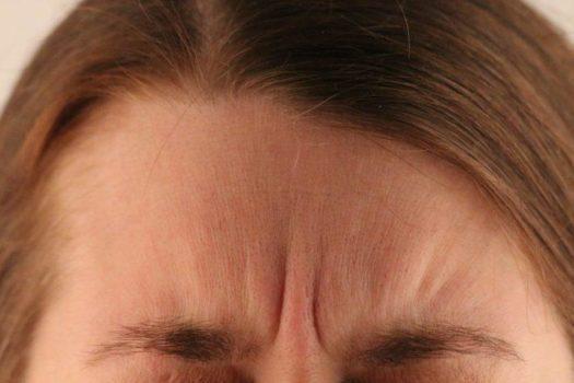 botox-zornesfalte-gesicht