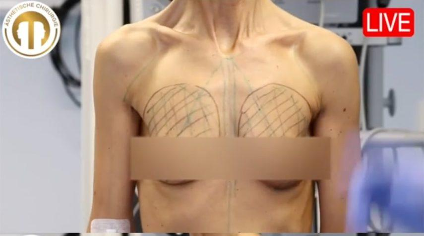 Brustvergrößerung Vorher Nachher