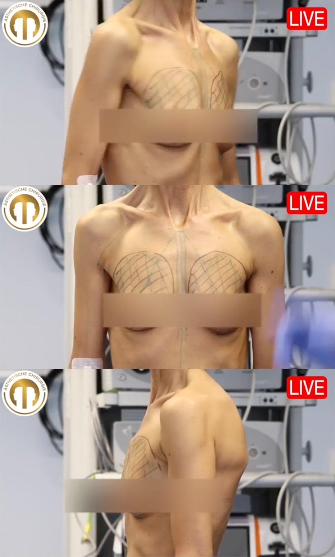 Bilder nachher operation intim vorher Schamlippenverkleinerung: Warum