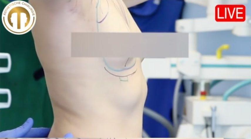 Kapselfibrose Wie lange dauert eine Brust OP?