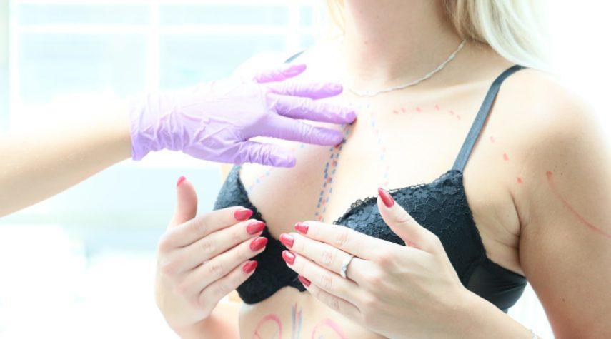 Kapselfibrose Welche Form bei Brustvergrößerung?